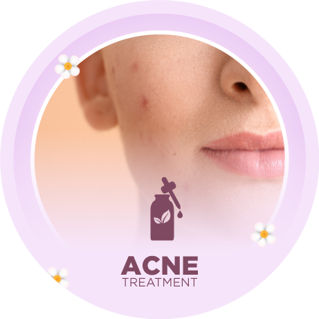 Solution for all your acne and pimple